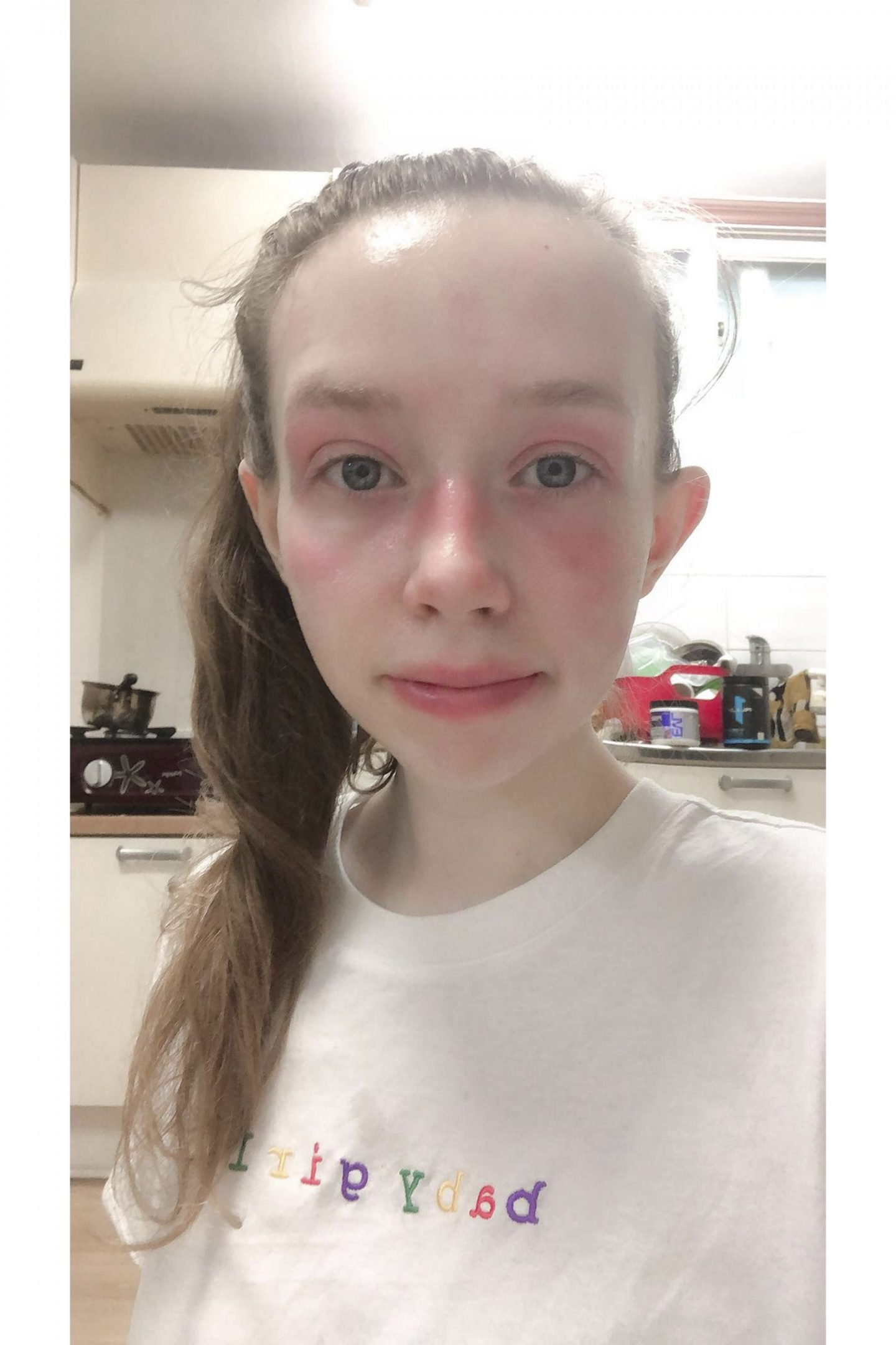bad facial eczema fiixii skincare blogger